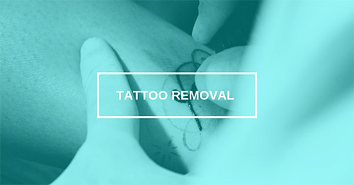 Kansas City Laser Tattoo Removal